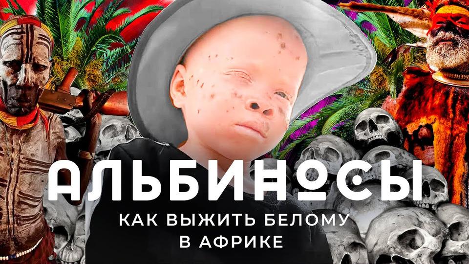 s05e100 — Альбиносы вАфрике: притеснение белых вСенегале | Людоеды, колдуны иплохая медицина